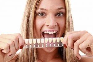 Dental Veneers   Dentist West Ryde