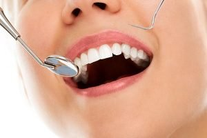 Tooth Fillings | Dentist West Ryde
