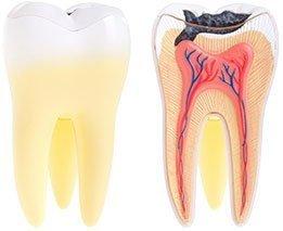 Dental Abscess | Dentist West Ryde