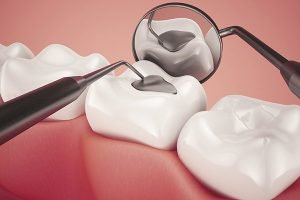Lost Tooth Filling or Dental Crown Emergency | Dentist West Ryde