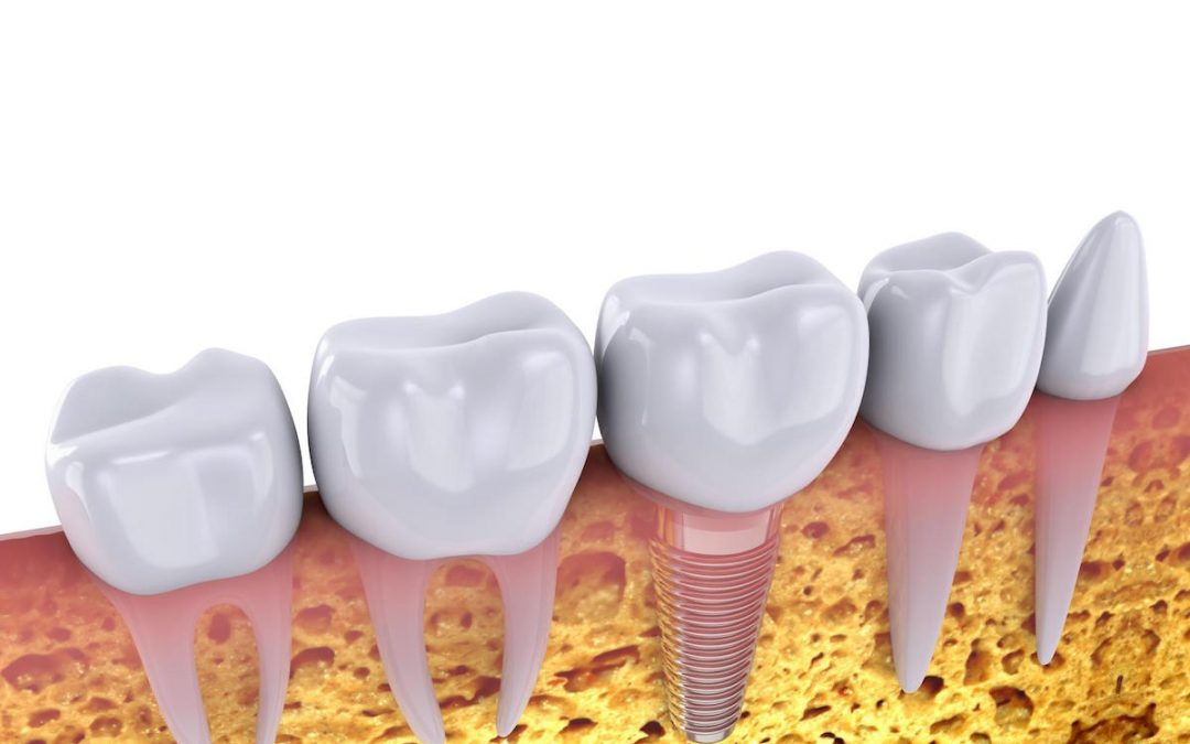 """Dental Implants Procedure Simplified"" Video"
