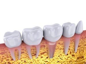 Dental Implants Procedure Simplified Video West Ryde
