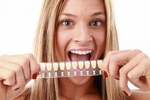 Dental Veneers | Dentist West Ryde