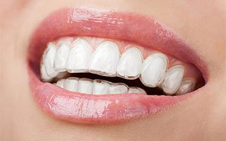 Invisalign | West Ryde Dental Clinic