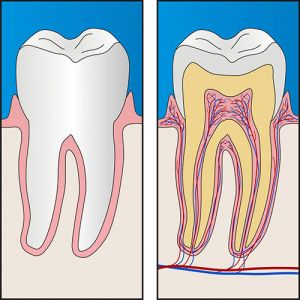 Root Canal Therapy | Dentist West Ryde