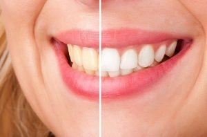 Teeth Whitening | Dentist West Ryde