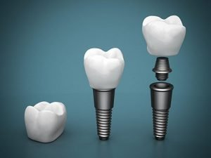 West Ryde Dental Clinic Dental Implants | Dentist West Ryde