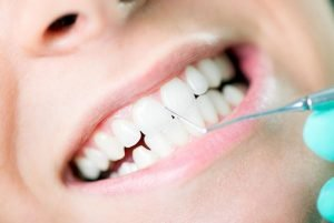 West Ryde Dental Gum Disease Treatment | Dentist West Ryde