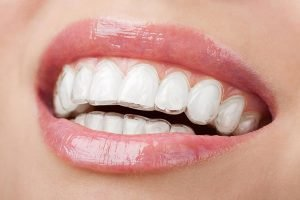 West Ryde Dental Clinic Invisalign | Dentist West Ryde