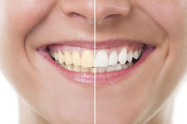 How to Get Rid of Yellow Teeth Instantly?