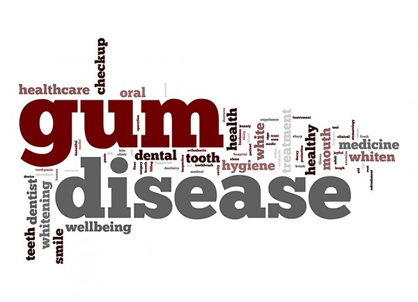 Prevention and Treatment of Gum Disease At West Ryde Dental Clinic