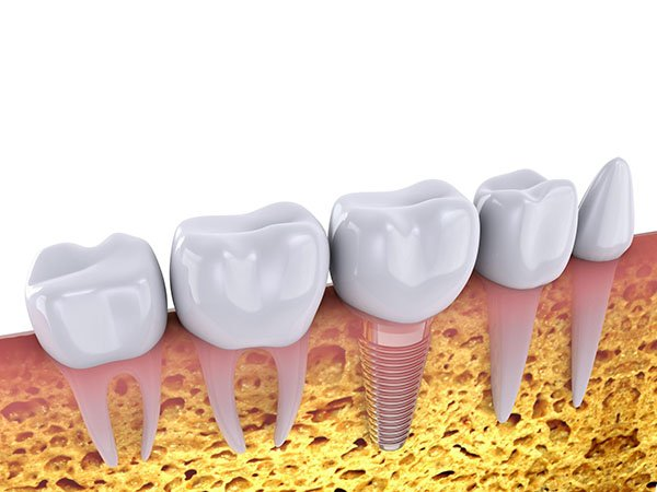 Dental Implants – How Long Can They Last?