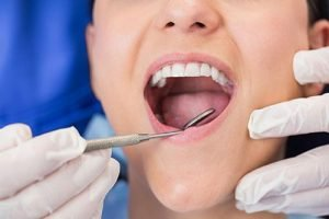 Preventative Dentistry | Dentist West Ryde